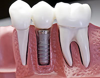 Dental Implants Rosa Beach, FL Defuniak